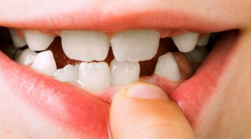 15 Funny & Printable Tooth Jokes for Kids
