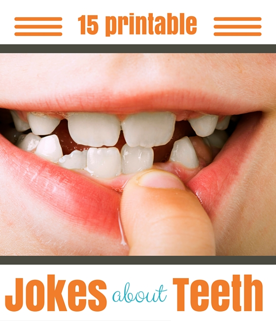 printable tooth jokes for kids ( great way to get kids excited about brushing!)